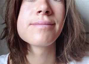 Cuidado bucal después de visitar al dentista.
