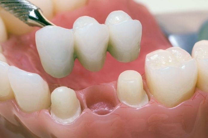 Dentaduras fijas