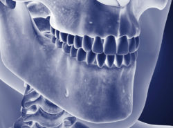 Osteomielitis de la mandíbula