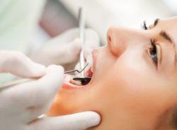 Plazmolifting en odontología