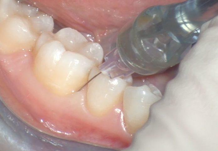 Anestesia intraligamentaria