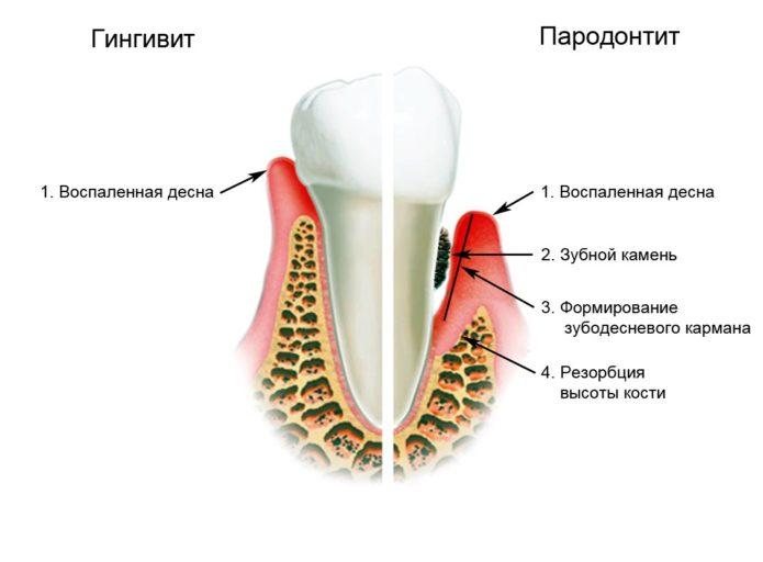 Enfermedades de los dientes y encías.